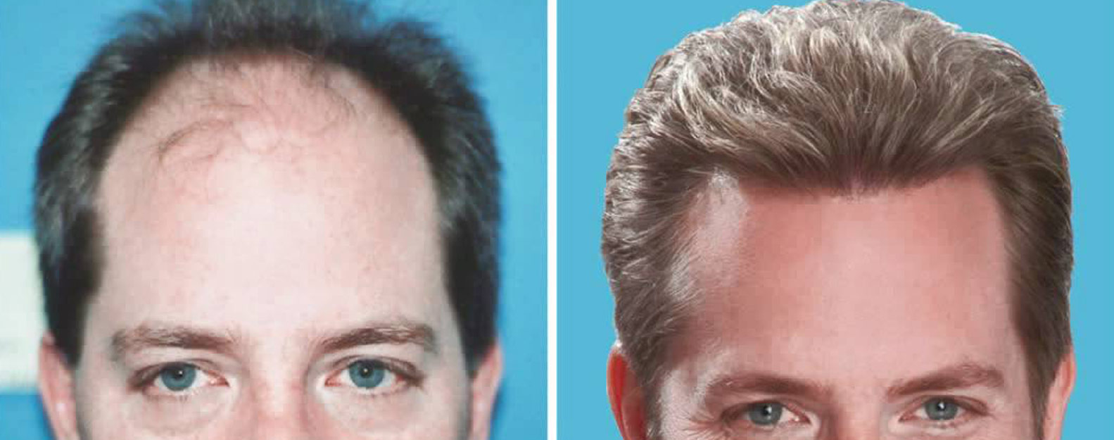 Looks Enhance Hair Clinic Non Surgical Hair Replacement Services